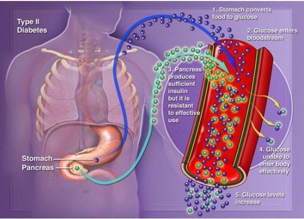 kisukari Type II diabetes