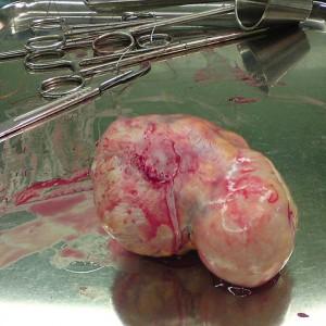 aina ya fibroids