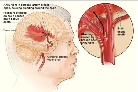 stroke aina ya hemorrhagic