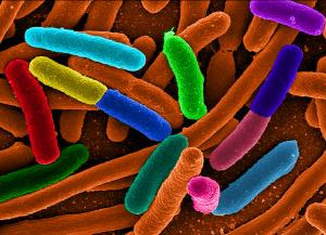 bacteria wa UTI  - E. Coli