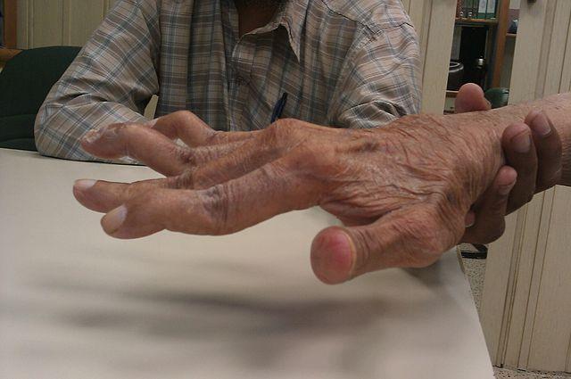 Rheumatoid_Arthritis_patient-
