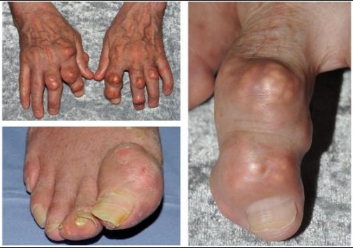 gout joints