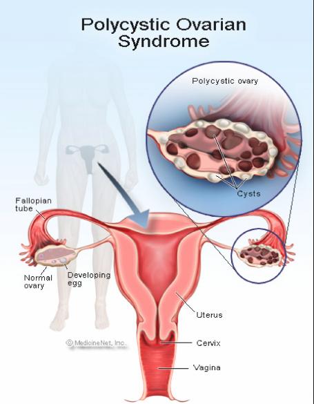 amenorrhea polycystic ovarian syndrome